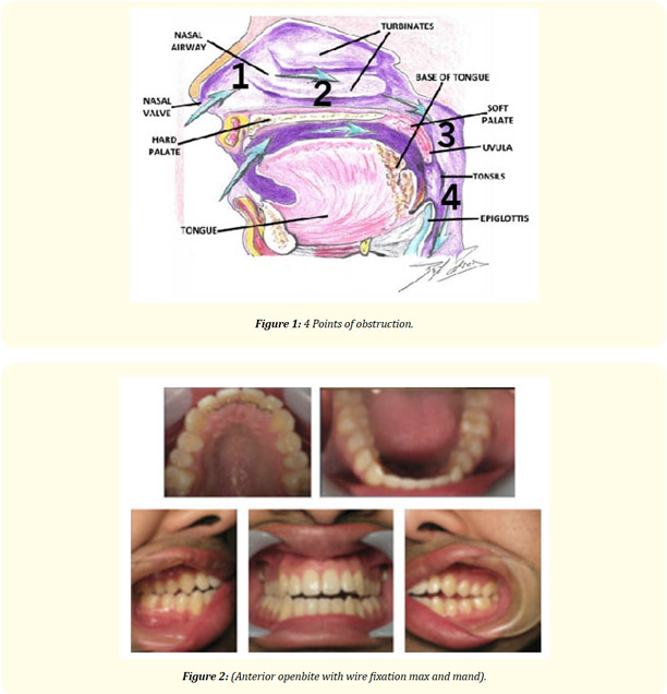 diagram of parts of the face and teeth
